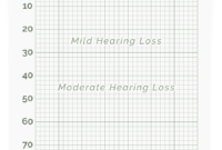 Online Hearing Test & Audiogram Printout in Blank Audiogram Template Download